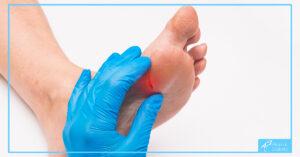 ulceratiile piciorului